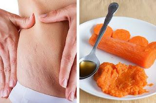Remède aux carottes pour atténuer les vergetures de la peau