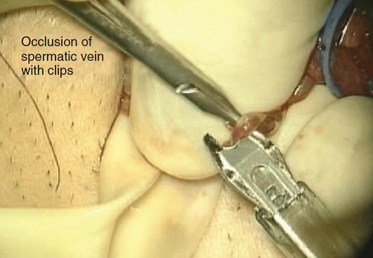 penyelesaian varicocelectomy