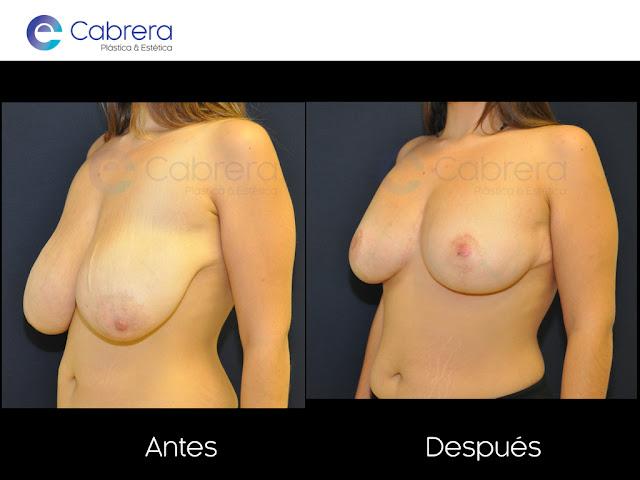 Foto caso antes y después 2. Reconstrucción de pecho Córdoba
