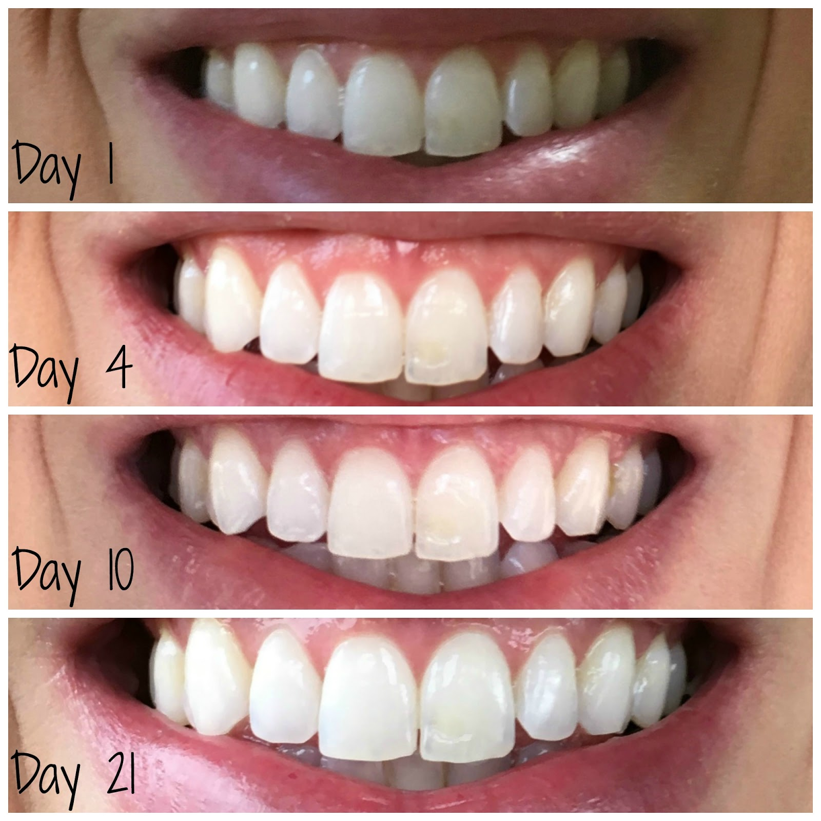 Smile Brilliant Teeth Progression