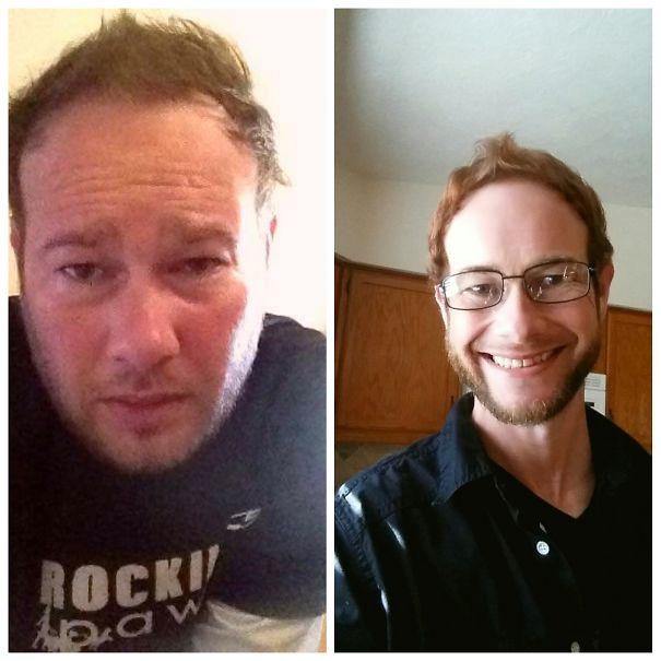 10+ Before-And-After Pics Show What Happens When You Stop Drinking - My Last Day As An Alcoholic 8.18.14 Celebrating 2 Years 2 Months And 20 Days Sober