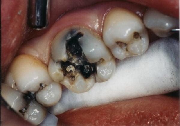Vì sao đau răng lại dẫn đến sưng má