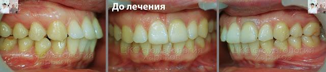 Зубы до  лечения брекетами смещенния средней линии челюсти