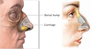 Best Rhinoplasty Nose surgery Correction of Nose defects Nose hump in Kolkata India