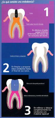 tratamiento dolor endodoncia conducto