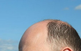 プラセンタは薄毛・ハゲに強い味方かも!?