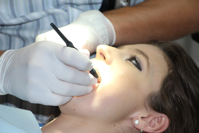 Punte sau implant dentar? Tu ce alegi?