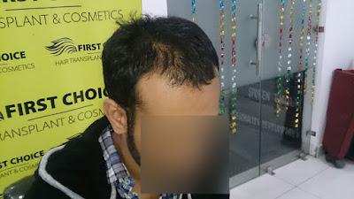 FCHTC hair transplant