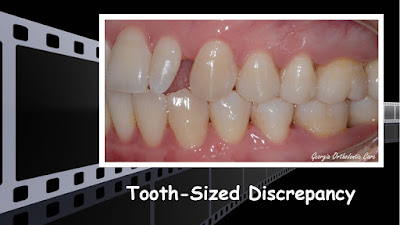 peg lateral, tooth-sized discrepancy, composite restoration, tooth colored restoration, Orthodontics, orthodontists, Clear, Invisible, Braces, Invisalign, underbite,class III, face mask, non-surgery, non-extraction, crossbite, overbite, class II, crooked, spaced, crowding, teeth, severe, jaw alignment, cosmetics, implants, children, dentists, dentistry, friendly, adults, children, family, Lawrenceville, Norcross, Buford, Hamilton Mill, Dacula, Auburn, Sugar Hill, Sugar Loaf, Doraville, Chamblee, Stone Mountain, Decatur, Collins Hill, Snellville, Suwanee, Grayson, Lilburn, Duluth, Cumming, Alpharetta, Marietta, Dekalb, Gwinnett, County, Atlanta, North Georgia, GA, Georgia, 30043, 30093, affordable, Vietnamese, Spanish, weekend, Saturday, appointments, Dr. Quang Nguyen, Georgia Orthodontic Care, Nguyen Orthodontics.