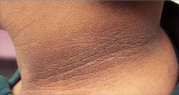 Home Remedies To Treat Dark Neck