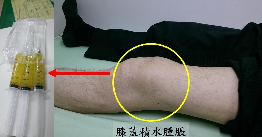 骨科醫師 陳彥名: 《健康聚寶盆》膝關節「老」積水 找原因最重要