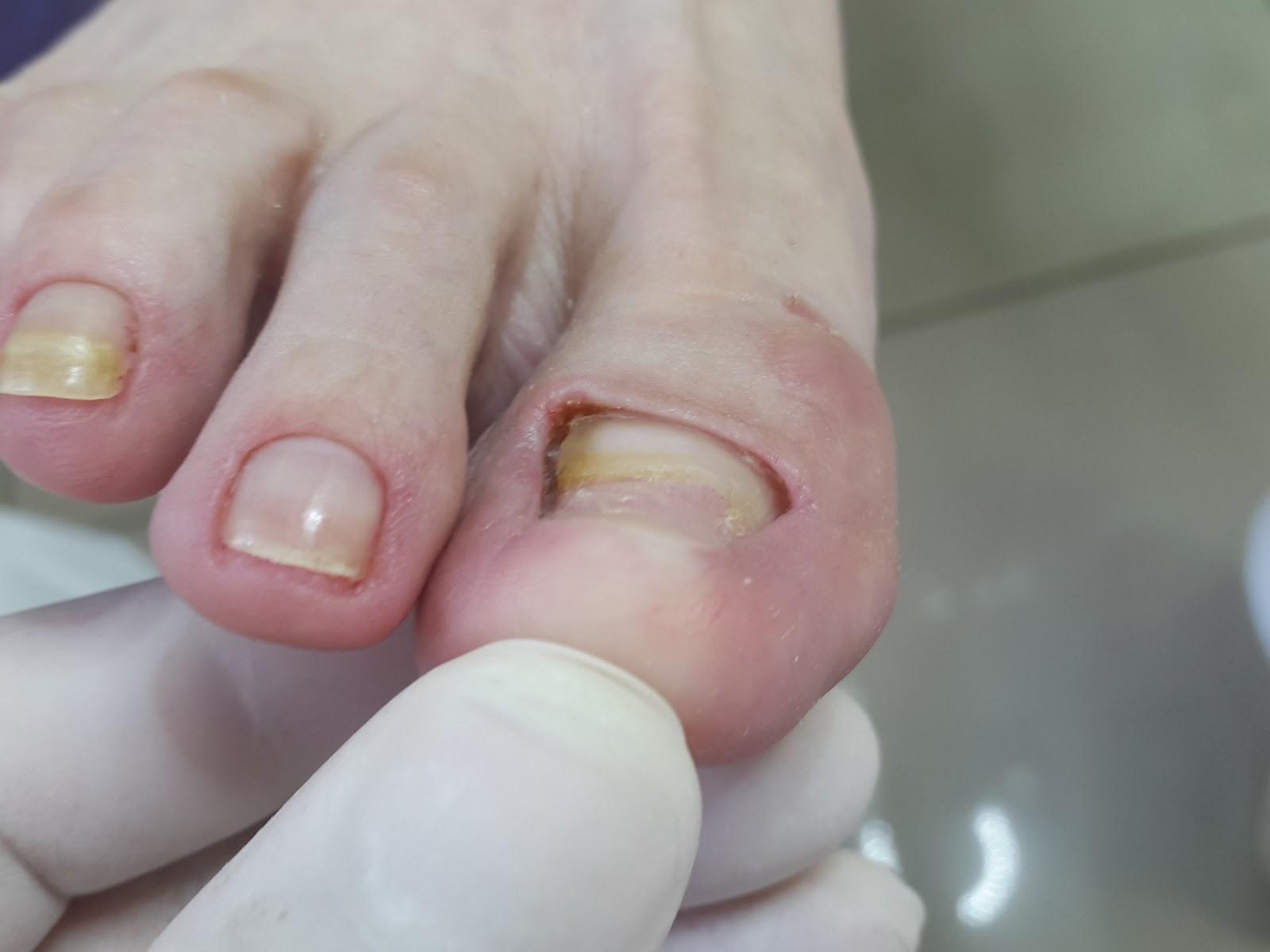 Протез ногтей при грибке