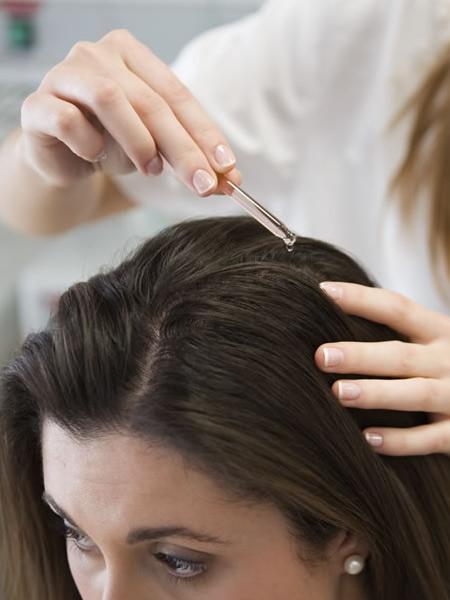 Consejos para prevenir la alopecia