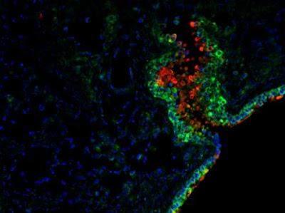 Bakteri Komensal Membantu Manusia Melawan Virus Bakteri Komensal Membantu Manusia Melawan Virus