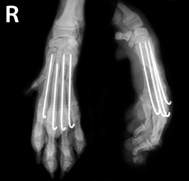 agujas dedos perro