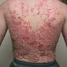 psoriasis eritroderma