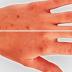 Простой метод устранит коричневые пятна на коже. Вам нужно всего лишь 2 ингредиента!