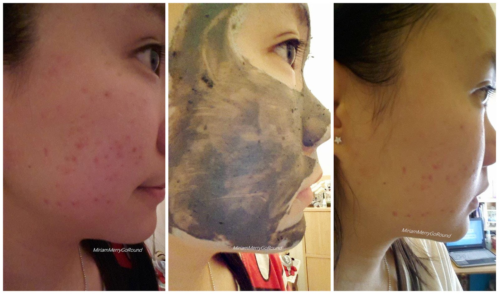 How To Get Rid Of Bumps Caused By Rosacea Young
