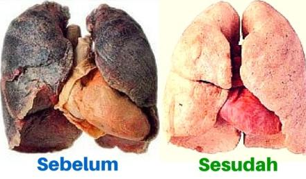 Cara Ampuh Membersihkan Paru-paru Dari Racun Rokok