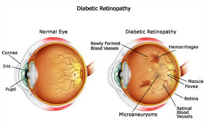 Pengobatan Diabetes Retina