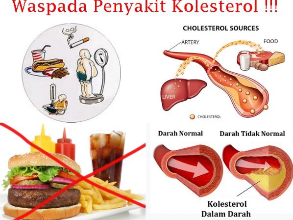 Terkena Gejala Kolesterol
