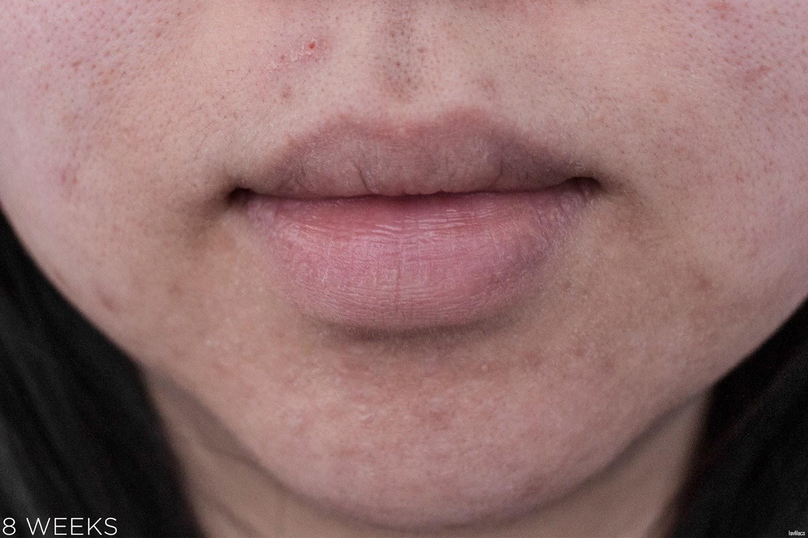 tria Hair Removal Laser Facial Hair 8 Weeks Closeup