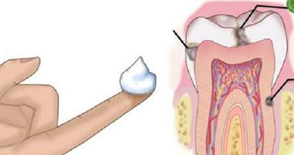 El sistema para el tratamiento profundo de las uñas ibx system comprar