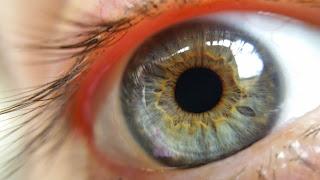 Mengenal Senarai Penyakit Mata Yang Perlu Kita Elak!