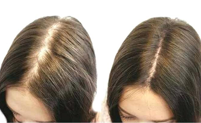 7 Ways to Regrow Thinning Hair