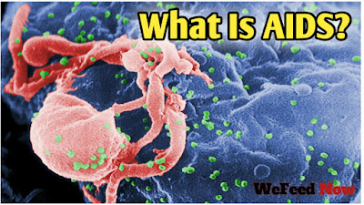 What is AIDS and it's cause?