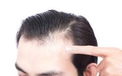 tumbuh rambut botak depan