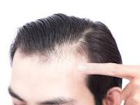Tips cepat menumbuhkan Rambut bagian depan terlihat Botak