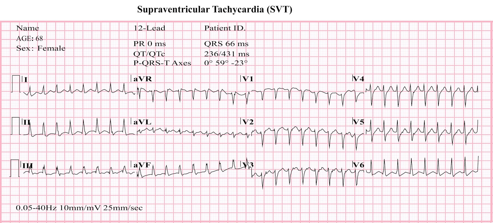 supraventricular tachycardia svt Supraventricular tachycardia (svt) is a rapid heart rate (100 beats or more per minute, but usually faster like 140-250 beats per minute) due to electrical impulses that originate in the upper ventricles of the heart.