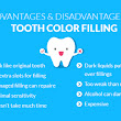 Tooth colored fillings (white fillings)