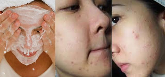 Taukah Anda cara mencuci wajah dengan benar? sebagian besar wanita tidak melakukannya Bagaimana dengan Kamu??