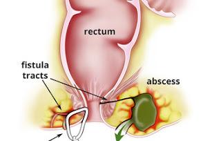 Penyakit Fistula Ani Sembuh Dengan Qnc Jelly Gamat