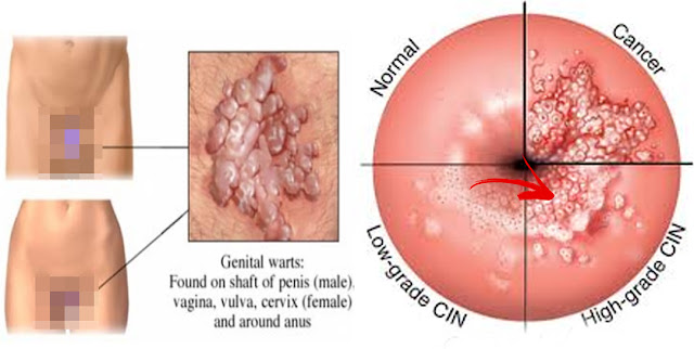What's The Difference Between Symptoms Of HIV and HPV