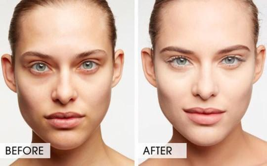 How to get rid of Dark Circles in a Day
