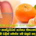 You gastritis disease has more Here is the make up of orange medicine