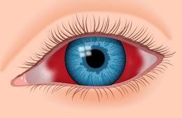 حالة النزف دموي للعين