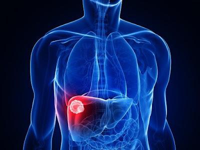 http://www.thegastrosurgeon.com/liver-abscess/