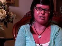 Wanita Berkulit Merah ini Melahirkan, Dokter Sangat Terkejut Saat Melihat Bayinya