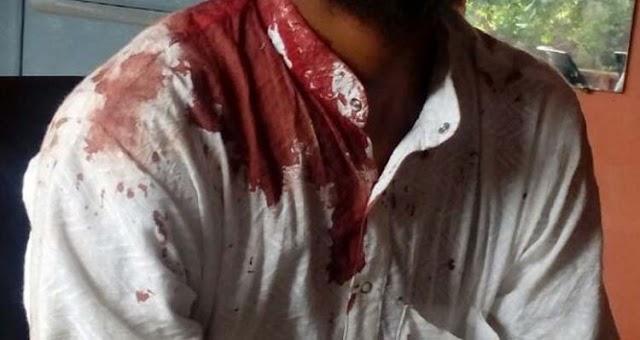 रास्ता रोककर युवक का सिर फो दिया | Bairad, Shivpuri News,