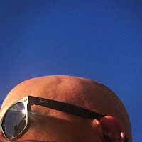 """WIRTW #503 (the """"bald is beautiful"""" edition)"""
