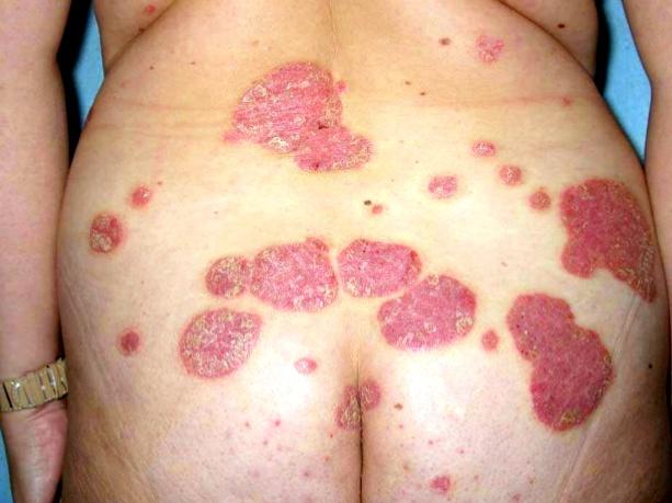 trastornos de la erección de vasculopatía