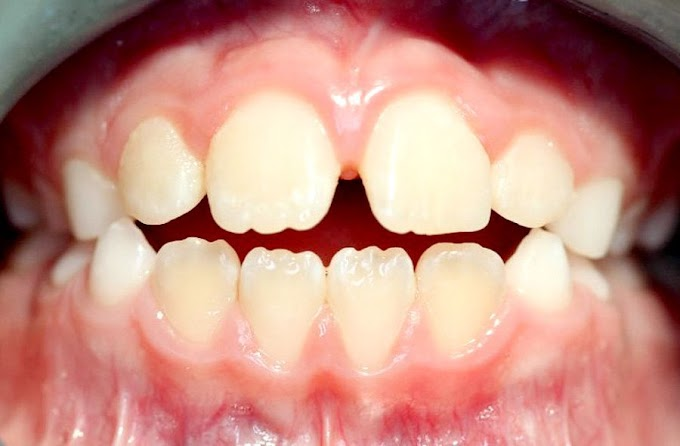 PDF: Hábitos orales frecuentes en Odontopediatría