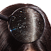 What Cаuѕеѕ Dandruff аnd Hоw to Easily Avоіd It