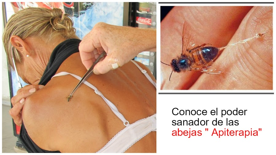 enfermedades-curadas-con-abejas-apiterapia