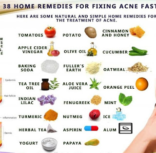 adult acne home remedies