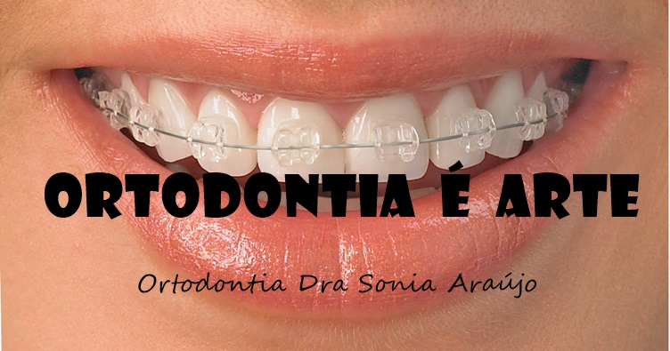 Ortodontia E Arte Bicarbonato De Sodio Usar Ou Nao